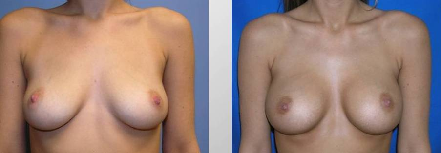 breast-augmentation1